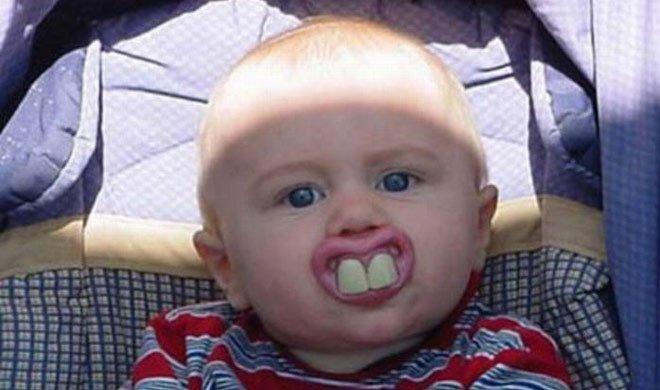 इस बच्चे के दांत देखकर...- Khabar IndiaTV